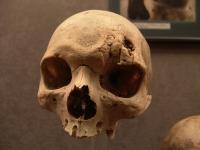 Museo Canario skull © Xosé Castro